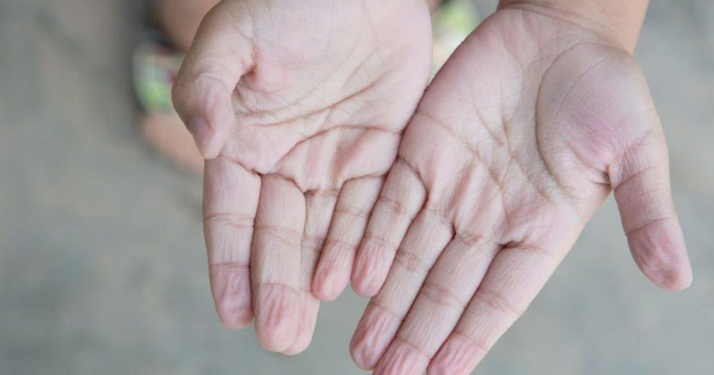 Kết quả hình ảnh cho 3 dấu hiệu bất thường ở bàn tay cho thấy dạ dày đang