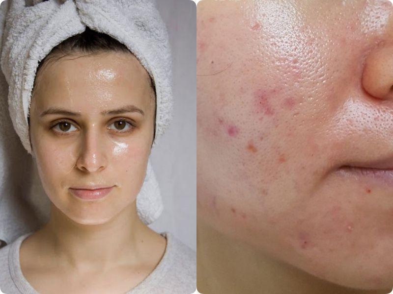3 bước giúp hội da dầu thu nhỏ lỗ chân lông, giảm mụn rõ rệt, da căng mịn sáng hồng - phunuduongthoi.vn 1